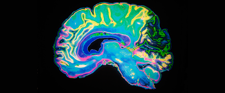X-ray of brain i rainbow colours